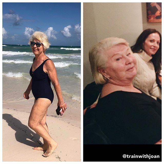 72283811 150875456284494 1221763980888721627 n - Mulher de 74 anos transforma seu corpo e o resultado é inspirador
