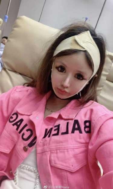 girl 16 allegedly undergoes 100 plastic surgeries in only 3 years3 - Jovem de 16 de anos faz mais de 100 cirurgias plásticas em apenas 3 anos