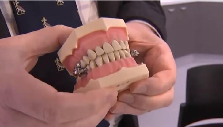 """aparelho para emagrecer que trava os dentes gera polemica e so fechar a boca 2 - Aparelho para emagrecer que trava os dentes gera polêmica – É só """"fechar a boca""""?"""