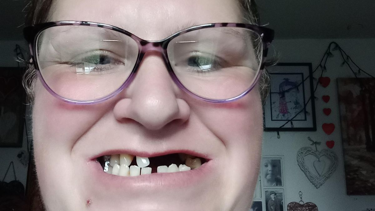 mae remove 11 dos proprios dentes porque nao tinha dinheiro para ir a um dentista particular - Mãe remove 11 dos próprios dentes porque não tinha dinheiro para ir a um dentista particular